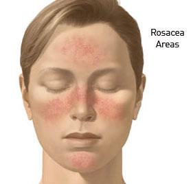rosacea-areas